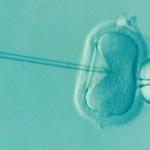 Ce provoacă infertilitatea la femei?